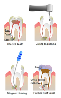 Root Canal Treatment Sutton - Tooth process chart1